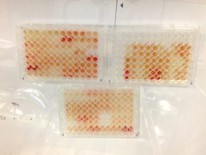 The samples are mixed with various reagents, and a colour change can be seen. The intensity of the colour is measured and compared to a reference range. The level of colour change indicates the density of antibodies bound to the plate and is used to gauge the immune response to tuberculin.